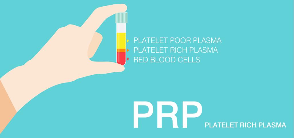 PRP療法 イメージ
