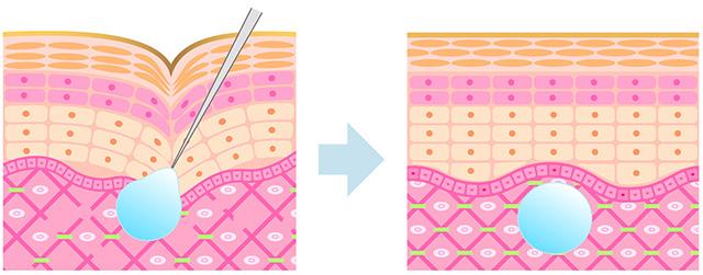 ヒアルロン酸施術イメージ